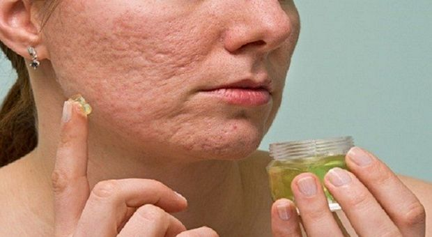 Gradually Remove Acne Scars Means That 100% Works!