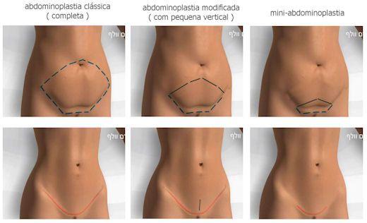CLIQUE AQUI! Abdominoplastia a plastica do abdomem Recorrer às cirurgias plásticas para conseguir o corpo tão desejado é uma prática cada vez mais comum. Tanto mulheres quanto homens tem um ideal ... http://saudenocorpo.com/abdominoplastia-plastica-abdomem/