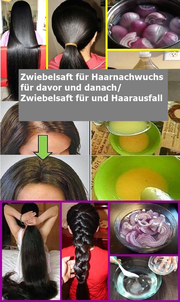 Zwiebelsaft für Haarnachwuchs für davor und danach/ Zwiebelsaft für und Haara…