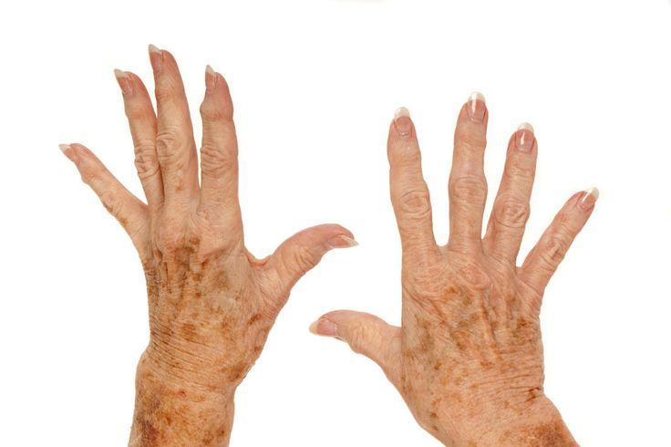 Jabón casero para eliminar las manchas de la piel | Cuidar de tu belleza es facilisimo.com