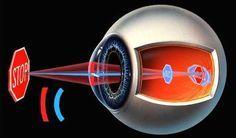ASTIGMATISMO: Relación Emocional. El astigmatismo es un problema ocular es ocasionado por una variación en la curvatura de la superficie del ojo,...
