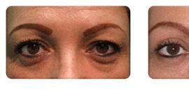Before & After Laser Eye Surgery | Soroudi Advanced Lasik & Eye Centers