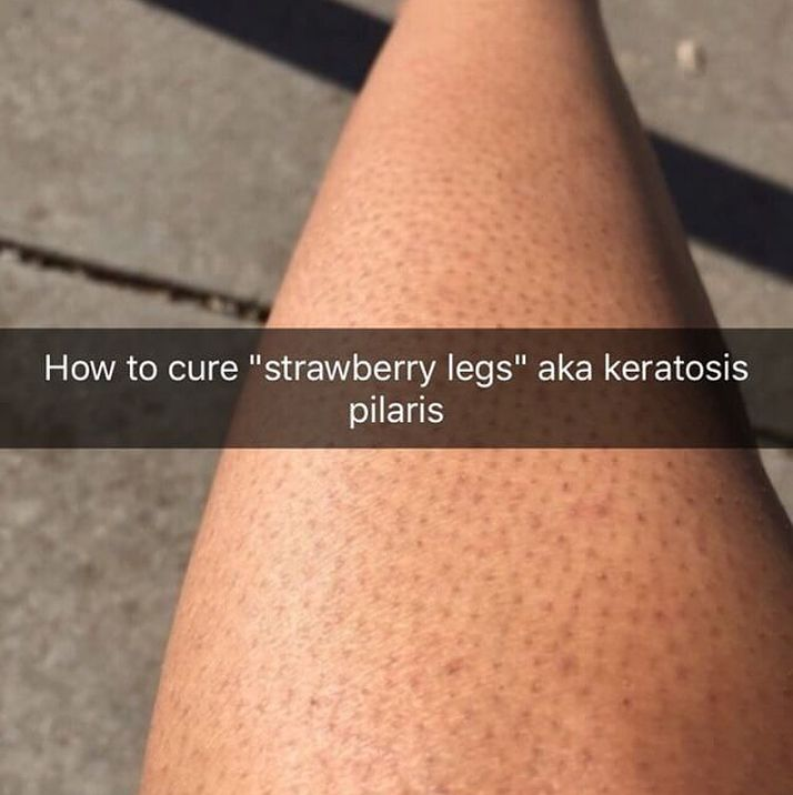 Submission How To Get Rid Of Strawberry Legs Most The