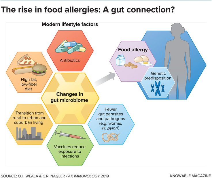 Gut microbes may be key to solving food allergies