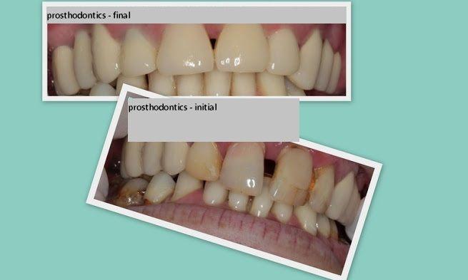 #dental #prosthetics http://www.intermedline.com/services/medical-tourism-romania-treatment/dental-clinics-romania#.UrdcSvQW3sk #dental, #dentistry, #cosmeticdentistry, #dentist, #dentalclinic, #dentaltourism
