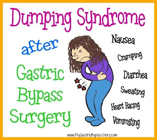 Dumping syndrome after gastric bypass surgery