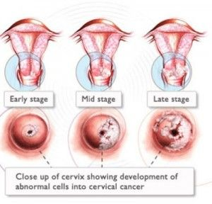 HPV can cause cervical cancer and throat cancer among others.  http://www.cnn.com/2013/06/03/health/hpv-oral-cancer-explainer/index.html