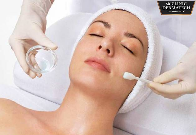 What you need to know about Chemical Peels. During a Chemical Peel, a variety of substances are used to exfoliate the outer layer of the skin. The younger skin is thus revealed post a chemical peel. After the skin heals, a new improved skin can be seen. Peels can be mild, moderate or deep, depending on the condition of the skin and the desired result. It is important to choose a doctor who has experience as the the results of chemical peels are largely dependent on the technique. It is the…