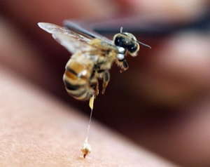 BEE STINGS THERAPY FOR MULTIPLE SCLEROSIS