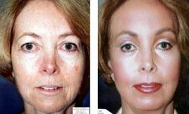 Before and after the Micro Laser Peel (MLP)