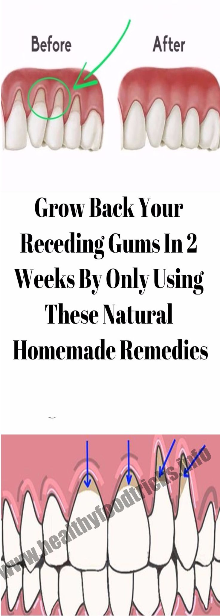 GROW BACK YOUR RECEDING GUMS IN 2 WEEKS BY ONLY USING THESE NATURAL HOMEMADE REMEDIES – Healthy Food Tricks