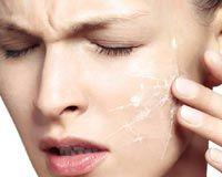 Sağlıklı Güzelliğin Adresi        Address healthy beauty: cilt hassasiyetleri ve kuru cildin sorunları