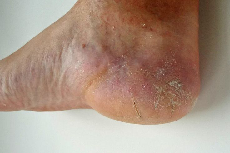 Craig's heel after rolling Skincerity for 1 month https://www.buynucerity.com/148226