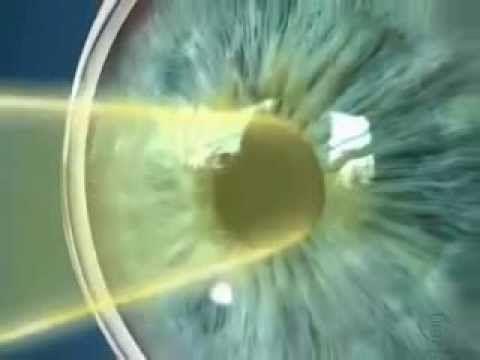 Строение глаза и зрения человека с точки зрения медицины. YouTube.