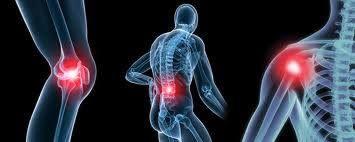 Kireçlenme tedavisi nasıl gerçekleştirilir? Eklemi soğutmak Özellikle akut ağrı ve şişliğin olduğu dönemlerde günde 3-4 kez ve 15-20 dakika süre ile eklemi soğutmak, içerideki ödemin dağılmasına ve onarımın hızlanacağına yardımcı olmak için soğuk uygulanır. Soğuk uygulaması, termapil ile yapılabilir.  Kronik dönemde sıcak uygulaması, damarların genişlemesini sağlayarak kan akımını ve beslenmeyi artıracaktır. Bu uygulama da, sıcak banyo ve termapil ile yapılabilir.