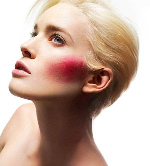 Simple tricks to reduce skin redness right away