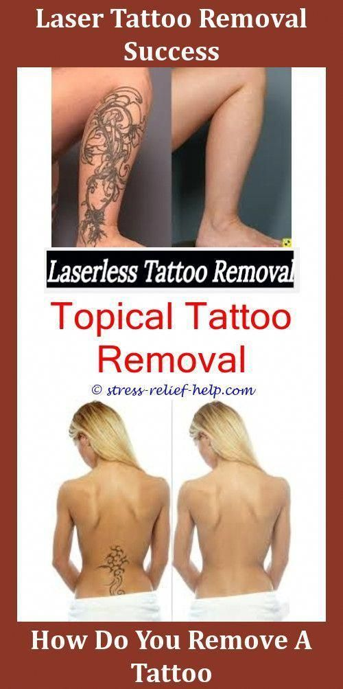 Tattoo Removal Service Picosure Color Tattoo Removal,best laser ...