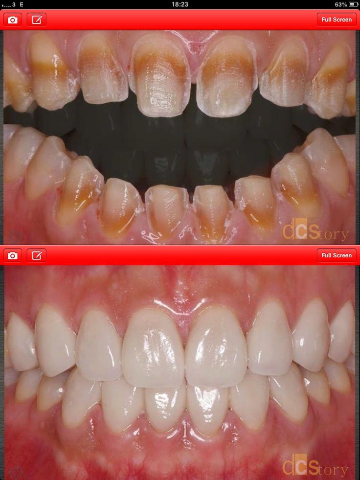 Best 25 Dental Veneers Ideas On Pinterest Porcelain