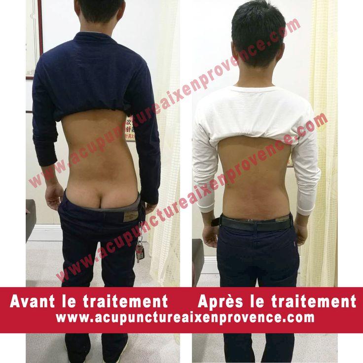 Thérapie Chao Wei Zhen Dao  Professeur Hu Chaowei, l'inventeur de la thérapie de Chao Wei Zhen Dao, Points de traitement sur le fascia superficiel, point de fixation du muscle peu profond. Effet immédiat, pas d'effets secondaires  Action Sur: Maux de tête, vertiges, cervicale, épaule gelée, hernie discale lombaire, blessure au psoas, maladie des articulations du genou, douleur au talon。  Tianran Liyun WANG, Thérapeute de MTC Avec le professeur Hu Chaowei。