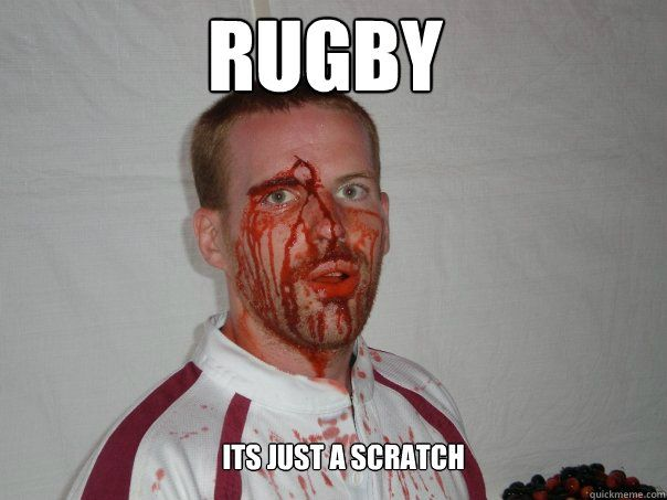 Rugby its just a scratch.
