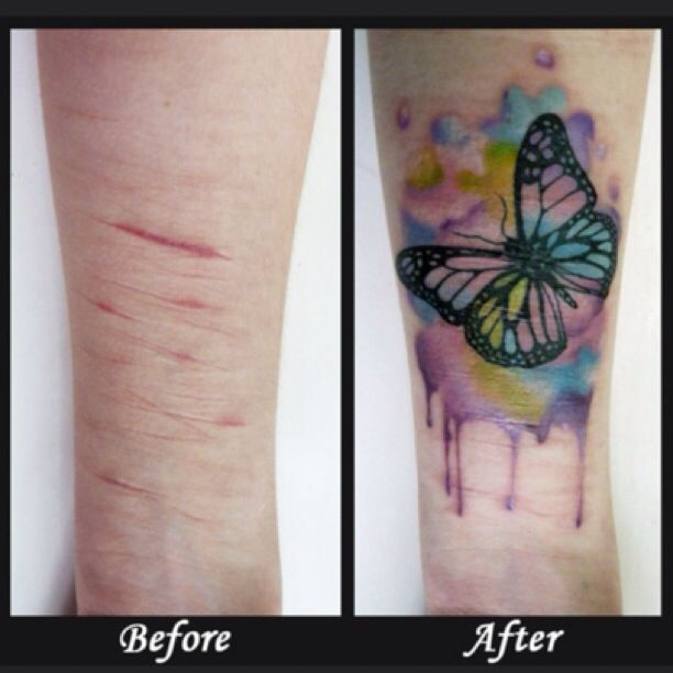 25 best ideas about tattoo over scar on pinterest for Covering scars with tattoo before and after
