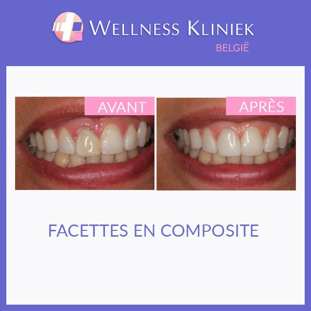 Wellness Kliniek Belgique: centre d'excellence européen pour la dentisterie cosmétique: parements en porcelaine, implants, couronnes de zirconium: Aller pour beaucoup d'infos, photos avant et après, les prix à: http://www.wellnesskliniek.com/fr/esthetique-dentaire. Obtenez tous les détails requis Wellness Kliniek #parement #porcelaine #photos_avant_et_après, les prix, #dentaire #implants #couronnes #dentaire #chirurgie