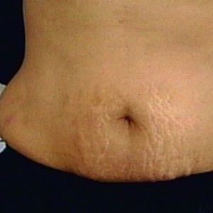 Natural cure for Stretch Marks: warm olive oil: restores blood circulation causing marks to fade, coconut oil: has anti scarring properties and restores damaged cells, wheat germ oil: packed with vitamins a, e,and d, restores cells, almond oil: prevents tissue damageand avocado oil: restores elasticity. All will cause marks to fade and disappear