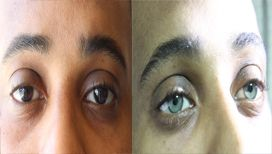 Pre and post operation eyes: Olive green!