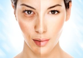Melasma is a common skin problem that causes brown to gray-brown patches to appear on the face. This is more than likely to affect women and people with darker skin tones, melasma affects more than six million women in the United States.
