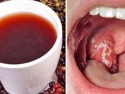 Objevila jsem nejlepší přírodní lék proti bolesti v krku – jen 4 hodiny a angína je pryč!