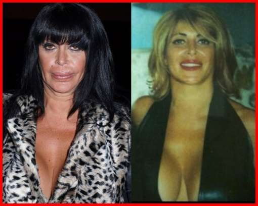 (Left) Big Ang Before Plastic Surgery