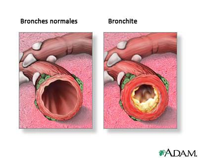Nous vous proposons de suivre un traitement naturel de la bronchite combiné à une alimentation saine pour vaincre et prévenir cette maladie très fréquente.