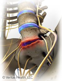 Degenerative Disc Disease Treatment for Low Back Pain Wish i could just fix it