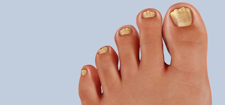 Onychomycosis is a common problem that you may know as toenail fungus.Here are some of the best tried-and-tested home remedies for nail fungus that have been used by people all over the world