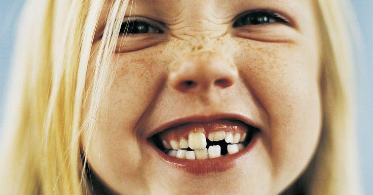 """¿Qué causa el retraso en la salida de los dientes de los niños?. Cuando los dientes permanentes de los niños salen sustancialmente más tarde que la media, se denomina erupción retardada de dientes. En """"Factors Influencing Permanent Teeth Eruption"""", Ruta Almonaitiene, y otros, argumentan que la erupción retardada de los dientes no suele indicar un problema médico. En cambio, numerosos factores sociológicos, ..."""