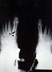 Lisfranc Injury of the Foot: A Commonly Missed Diagnosis - American Family Physician