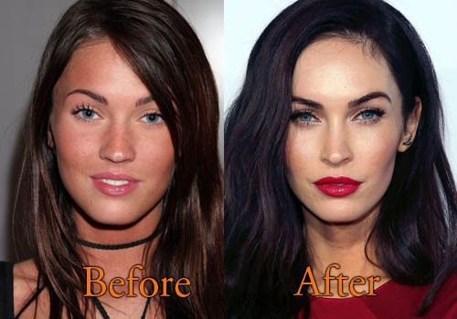 Megan Fox Before and After Plastic Surgery #meganfox #celebritysurgery http://topcelebritysurgery.com/megan-fox-plastic-surgery/