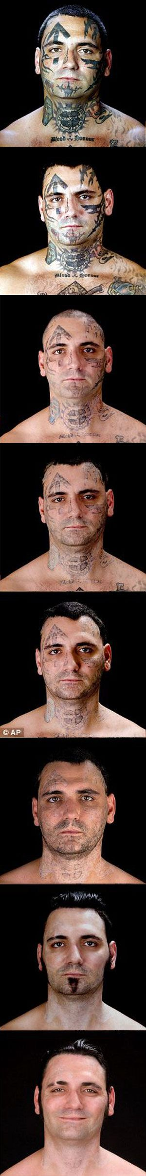 Removing tattoos with laser surgery...