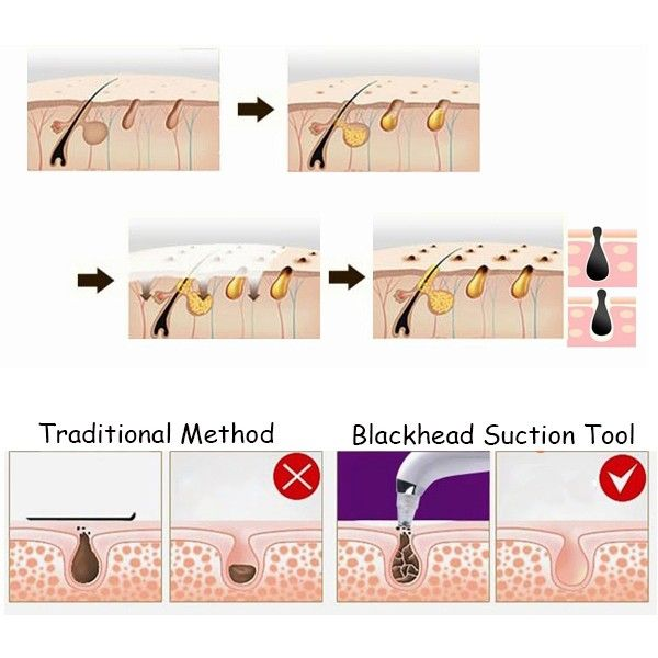 Electric Blackhead Suction Ance Remover Vacuum Microdermabrasion Pore Cleanser Facial Skin Lift