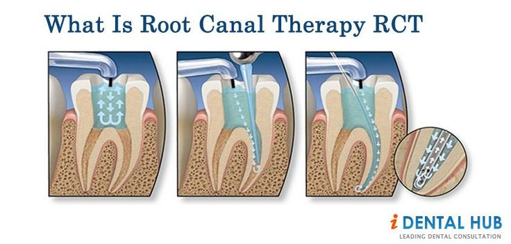 All information about Root Canal Treatment, Root Canal Pain, What problems can arise if root canal cannot be treated.
