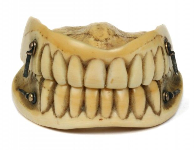 Ivory Dentures Sprung and Cased, hand carved, 1790s, United Kingdom. In the absence of suitable adhesives the early dentures were held together by springs at each angle which helped to retain them in place with an open mouth. - Phisick   Medical Antiques