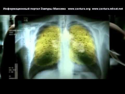 5) Научный фильм «Правда о табаке и как бросить курить» - YouTube
