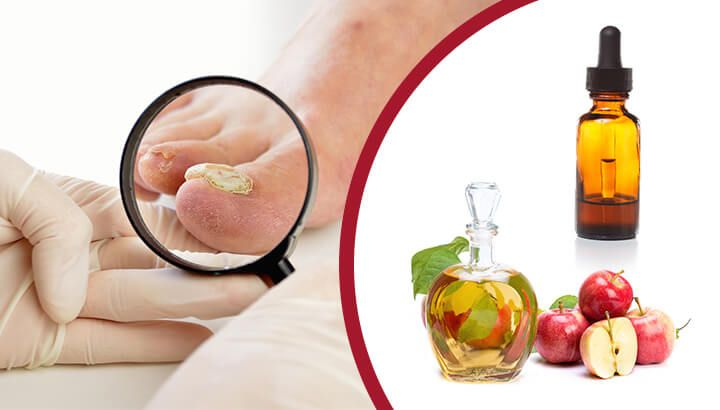 7 truly amazing natural remedies for toenail fungus