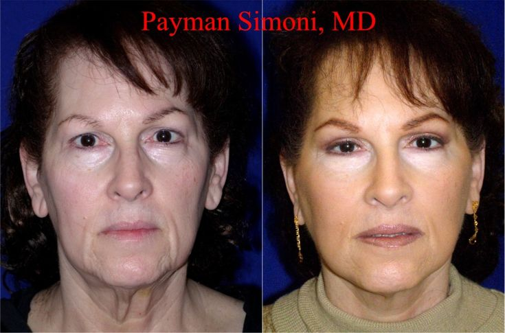 Celebrity Face Lift - photos | Stars Changes