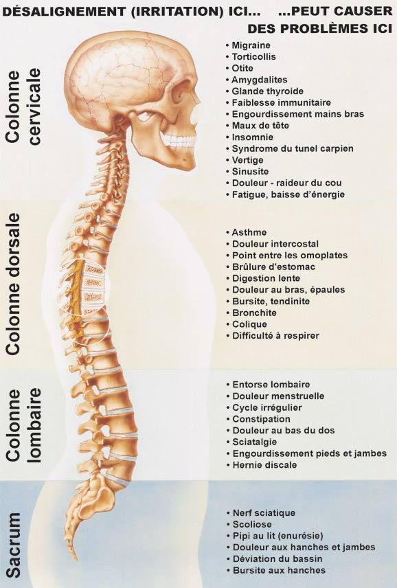 Syndrome De Tout Garder #14: A Chaque Zone Ces Problèmes
