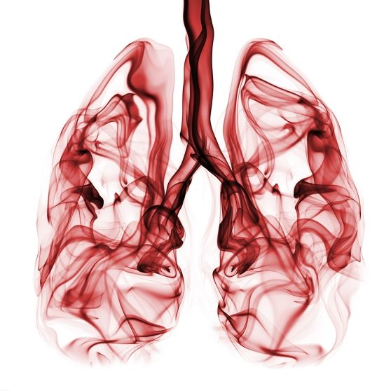 Lung Cancer: Symptoms & Screenings