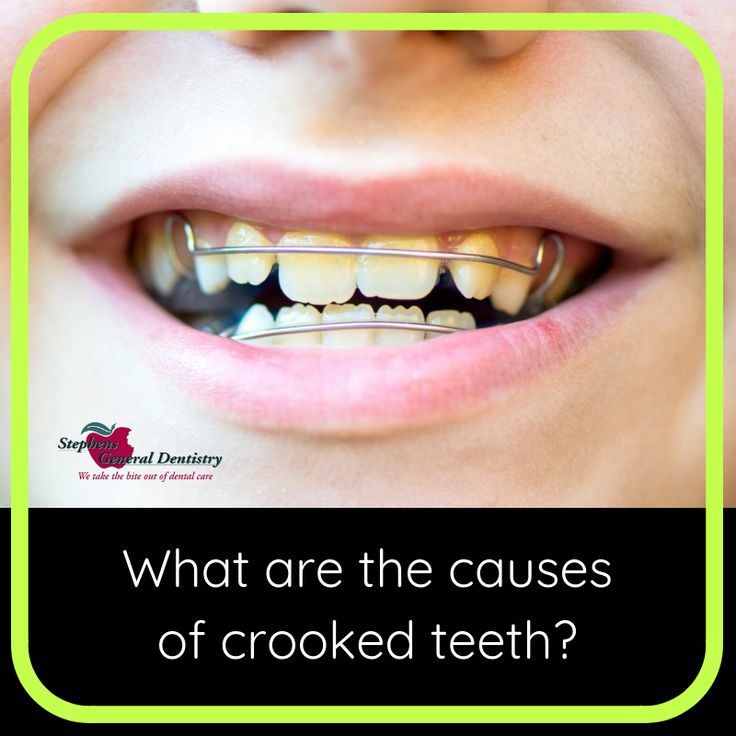 Crooked teeth are mostly caused due to hereditary. Also