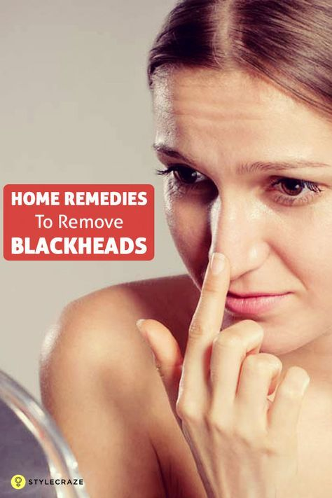 24 Simple Home Remedies To Remove Blackheads Permanently