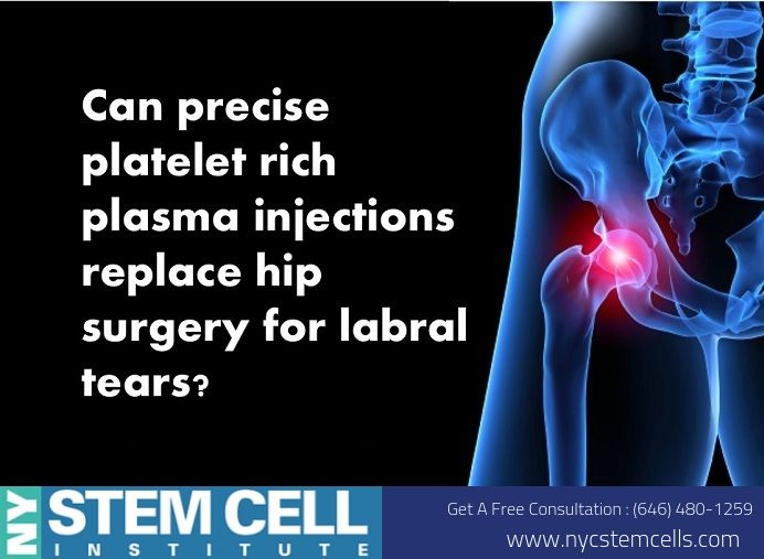 Pin On Stem Cell Therapy New York City