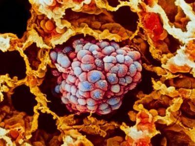 celulas-cancer-globulos